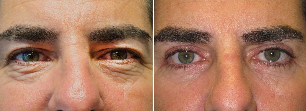 42 year old male patient with upper blepharoplasty, lower blepharoplasty eyelid surgery, and eye bag surgery before and after recovery photo