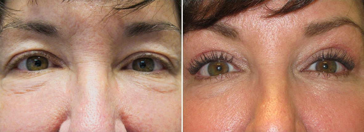 54 year old female patient with upper blepharoplasty, lower blepharoplasty eyelid surgery, eye bag surgery, and canthopexy surgery to lift and suspend drooping or sagging lower eyelids before and after recovery photo