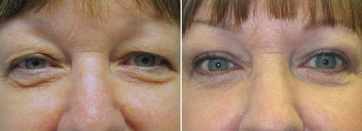 63 year old female patient with upper blepharoplasty, lower blepharoplasty eyelid surgery, eye bag surgery, and ptosis repair before and after recovery photo