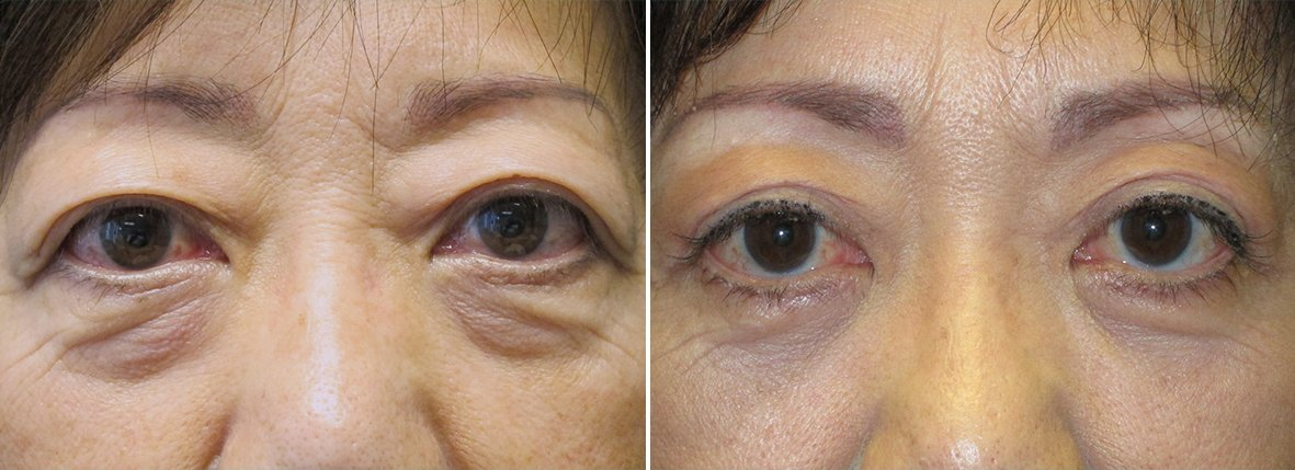 61 year old female patient with upper blepharoplasty, lower blepharoplasty eyelid surgery, and eye bag surgery before and after recovery photo