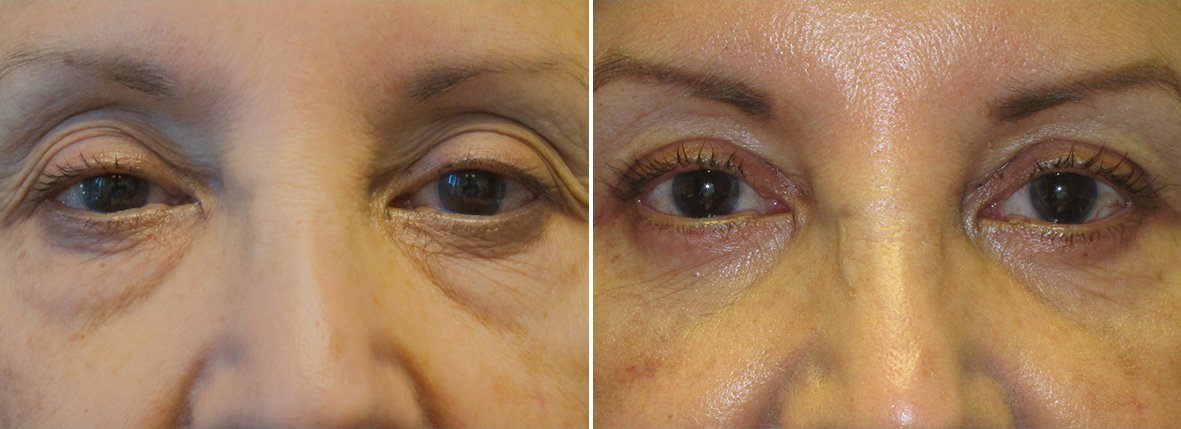 70 year old female patient with upper blepharoplasty, lower blepharoplasty eyelid surgery, eye bag surgery, ptosis repair, and canthopexy surgery to lift and suspend drooping or sagging lower eyelids before and after recovery photo