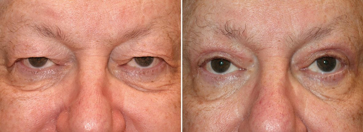 66 year old male patient with upper blepharoplasty eyelid surgery, eye bag surgery, and ptosis repair before and after recovery photo