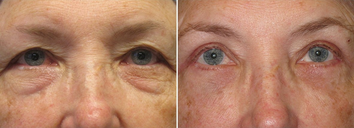 75 year old female patient with upper blepharoplasty, lower blepharoplasty eyelid surgery, eye bag surgery, and ptosis repair before and after recovery photo