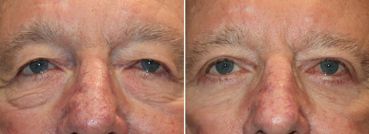 78 year old male patient with upper blepharoplasty, lower blepharoplasty eyelid surgery, eye bag surgery, ptosis repair, and canthopexy surgery to lift and suspend drooping or sagging lower eyelids before and after recovery photo