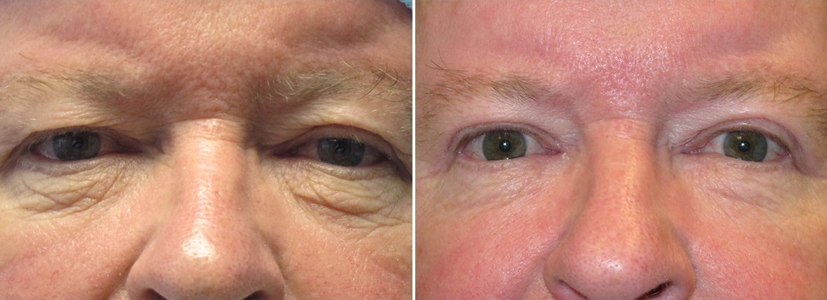 68 year old male patient with upper blepharoplasty, lower blepharoplasty eyelid surgery, eye bag surgery, and ptosis repair before and after recovery photo