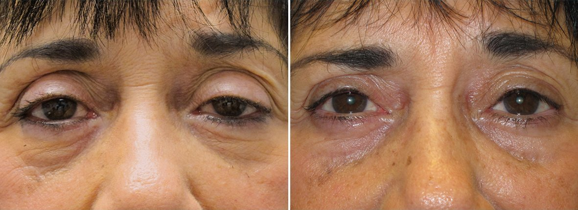 68 year old female patient with upper blepharoplasty, lower blepharoplasty eyelid surgery, eye bag surgery, ptosis repair, and canthopexy surgery to lift and suspend drooping or sagging lower eyelids before and after recovery photo