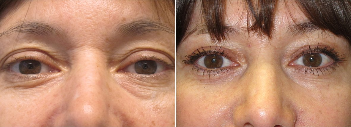 52 year old female patient with upper blepharoplasty, lower blepharoplasty eyelid surgery, and eye bag surgery before and after recovery photo