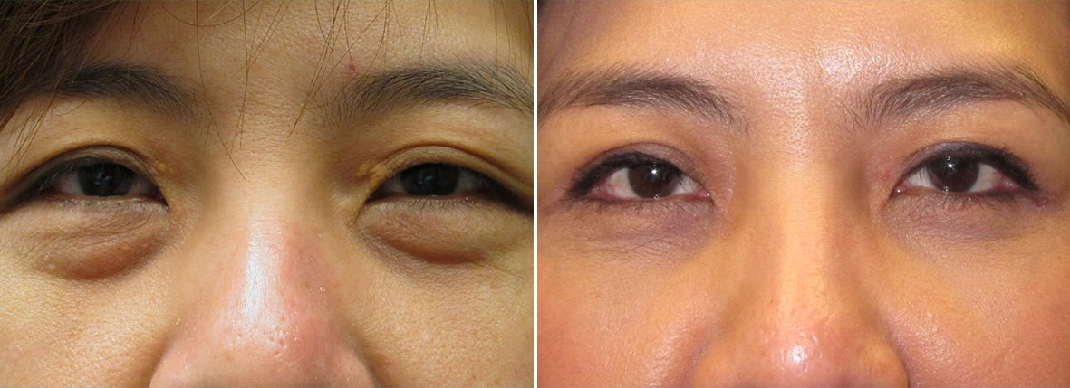 45 year old female patient with upper blepharoplasty, lower blepharoplasty eyelid surgery, and eye bag surgery before and after recovery photo