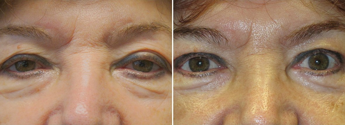68 year old female patient with upper blepharoplasty, lower blepharoplasty eyelid surgery, eye bag surgery, ptosis repair, and canthoplasty surgery before and after recovery photo