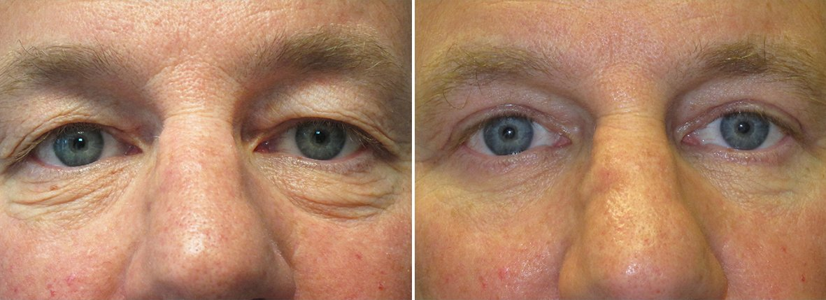 49 year old male patient with upper blepharoplasty, lower blepharoplasty eyelid surgery, eye bag surgery, and canthopexy surgery to lift and suspend drooping or sagging lower eyelids before and after recovery photo