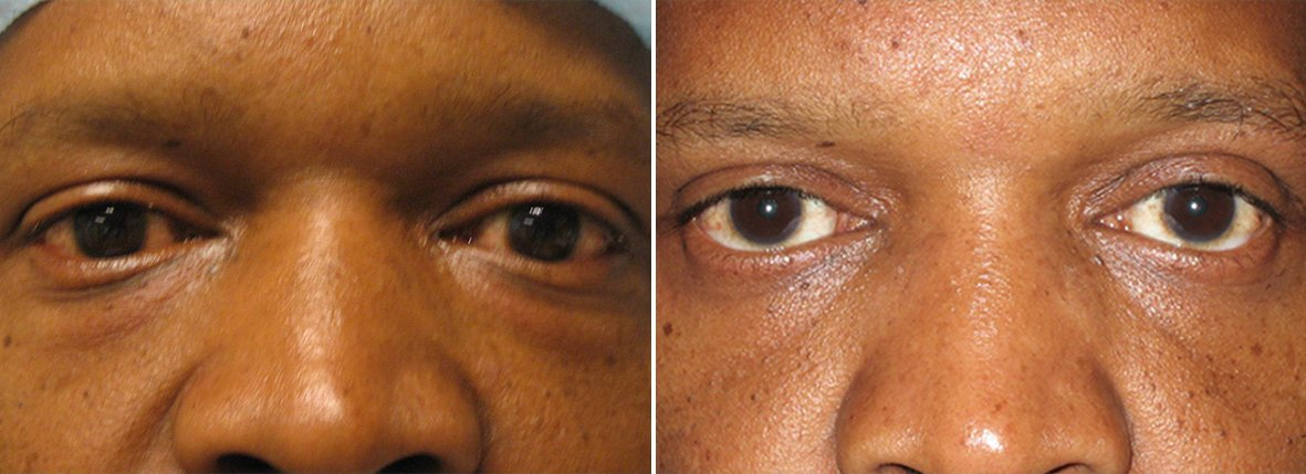 48 year old male patient with upper blepharoplasty, lower blepharoplasty eyelid surgery, and eye bag surgery before and after recovery photo