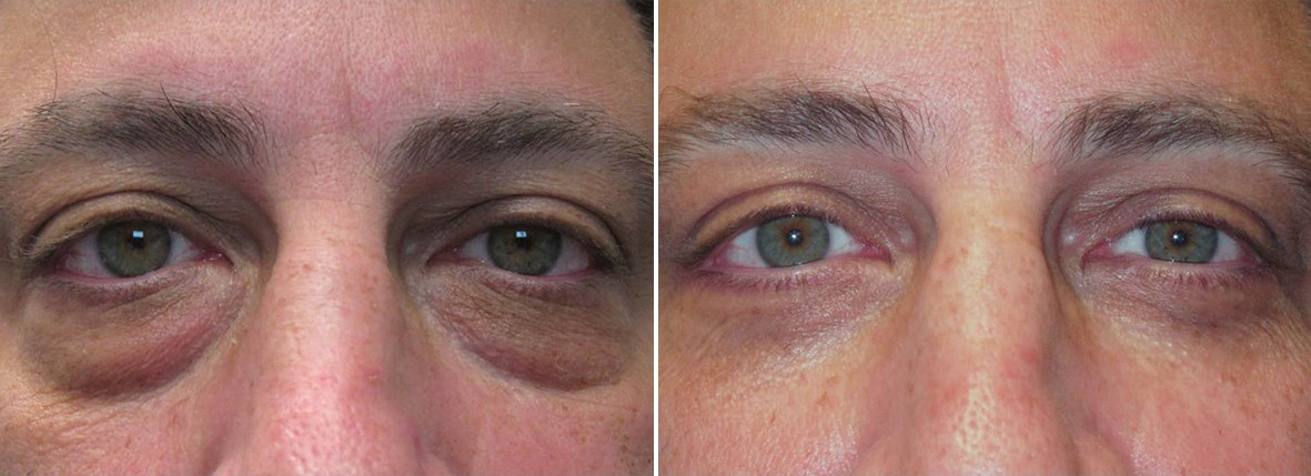 47 year old male patient with lower blepharoplasty eyelid surgery, eye bag surgery, and canthopexy surgery to lift and suspend drooping or sagging lower eyelids before and after recovery photo