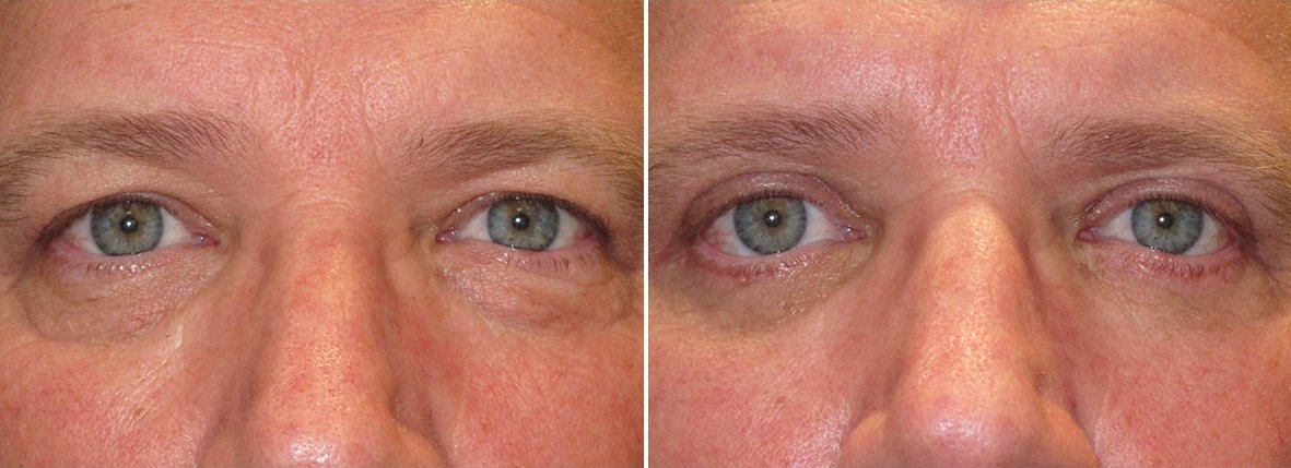 60 year old male patient with upper blepharoplasty, lower blepharoplasty eyelid surgery, and eye bag surgery before and after recovery photo