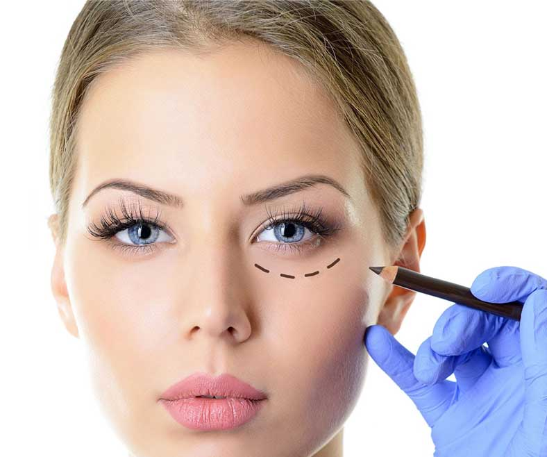 woman eye rejuvenation patient with surgical site markings