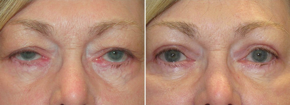67 year old female patient with upper blepharoplasty, lower blepharoplasty eyelid surgery, eye bag surgery, and ptosis repair before and after recovery photo
