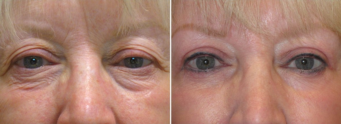 69 year old female patient with upper blepharoplasty, lower blepharoplasty eyelid surgery, eye bag surgery, and ptosis repair before and after recovery photo