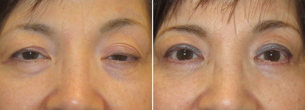 68 year old female patient with upper blepharoplasty, lower blepharoplasty eyelid surgery, eye bag surgery, and ptosis repair before and after recovery photo