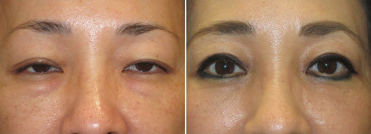 51 year old female patient with upper blepharoplasty, lower blepharoplasty eyelid surgery, eye bag surgery, and ptosis repair before and after recovery photo