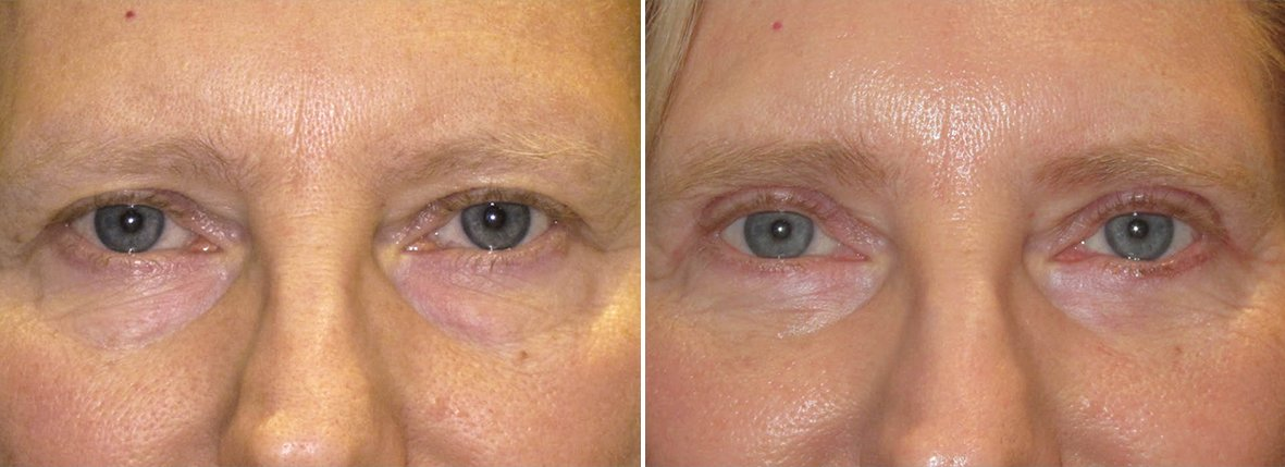 60 year old female patient with upper blepharoplasty, lower blepharoplasty eyelid surgery, and eye bag surgery before and after recovery photo