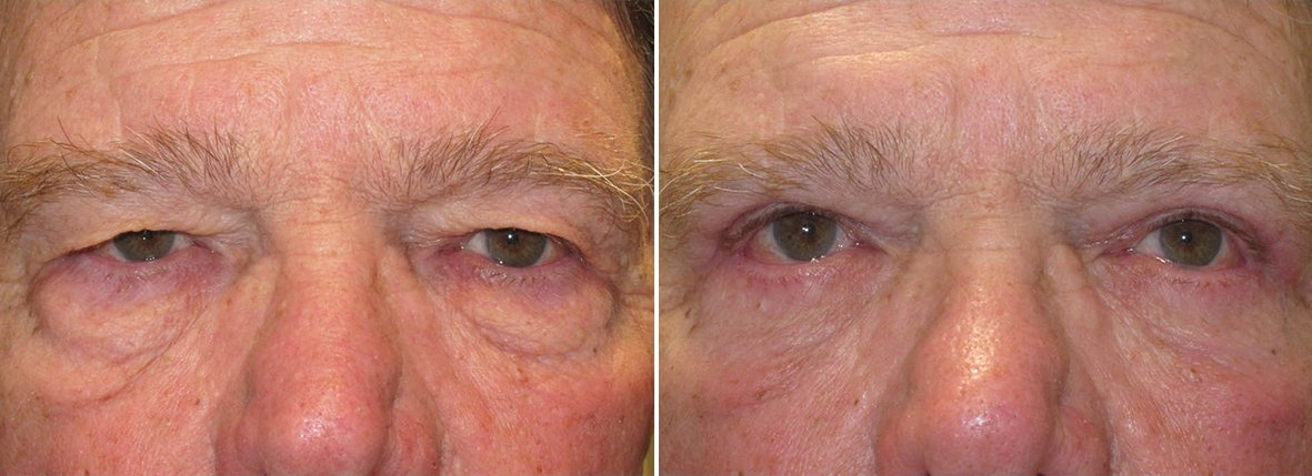 75 year old male patient with upper blepharoplasty, lower blepharoplasty eyelid surgery, eye bag surgery, ptosis repair, and canthopexy surgery to lift and suspend drooping or sagging lower eyelids before and after recovery photo