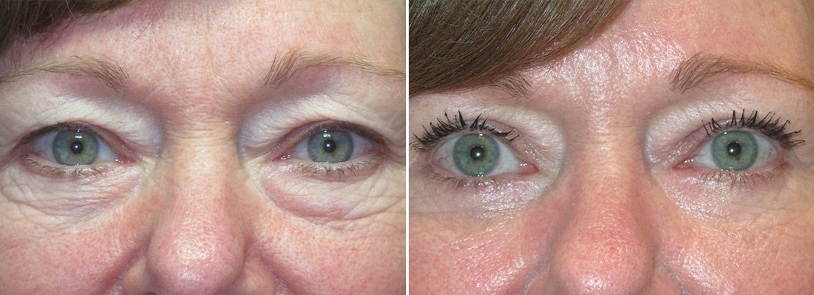 64 year old female patient with upper blepharoplasty, lower blepharoplasty eyelid surgery, and eye bag surgery before and after recovery photo