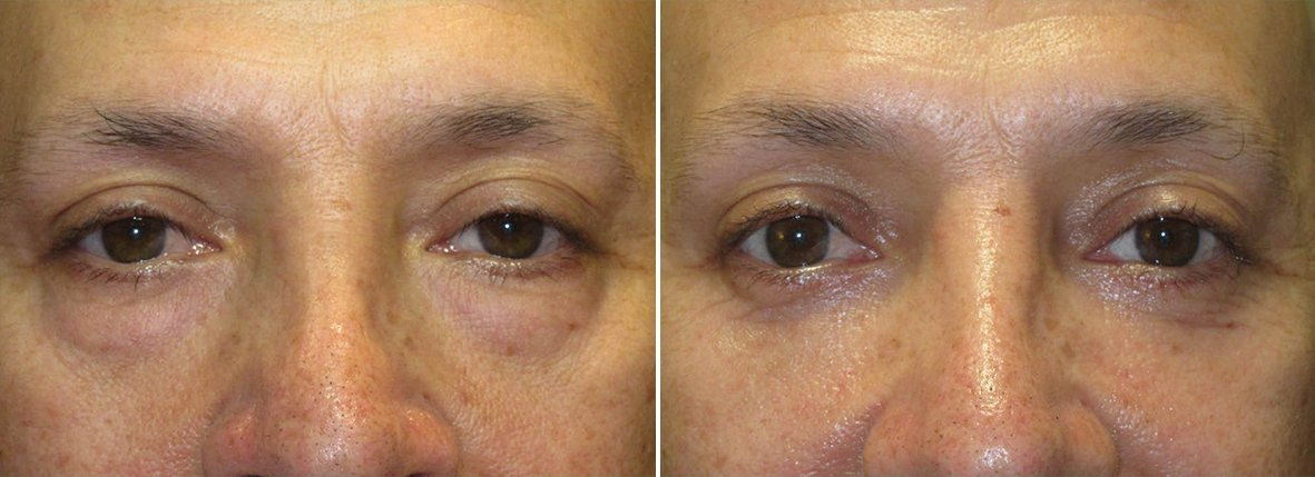 54 year old male patient with lower blepharoplasty eyelid surgery and eye bag surgery before and after recovery photo