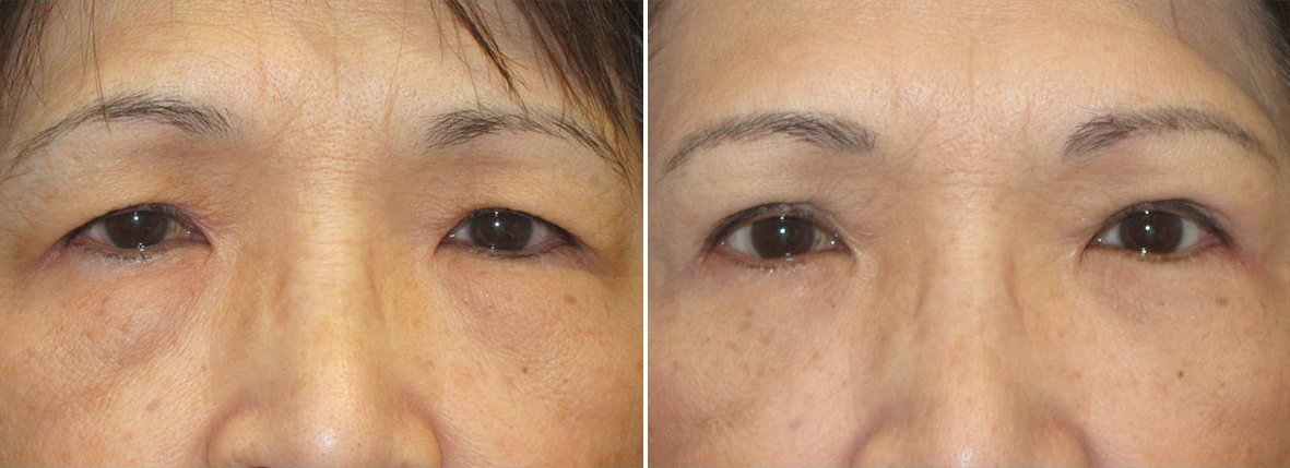 61 year old female patient with upper blepharoplasty, lower blepharoplasty eyelid surgery, eye bag surgery, and ptosis repair before and after recovery photo