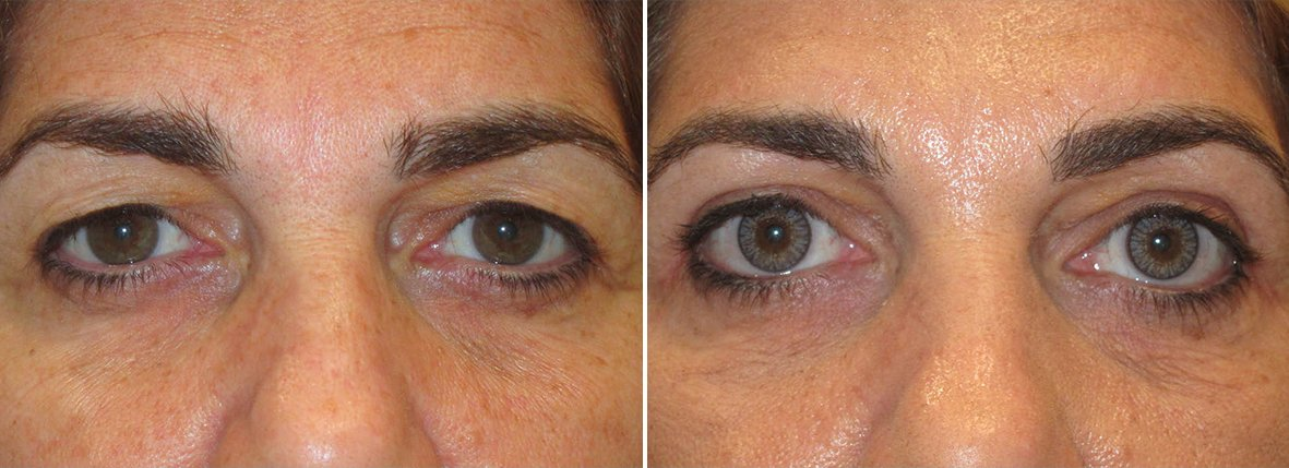 56 year old female patient with upper blepharoplasty eyelid surgery before and after recovery photo