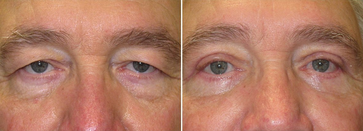 68 year old male patient with upper blepharoplasty, lower blepharoplasty eyelid surgery, eye bag surgery, ptosis repair, and canthopexy surgery to lift and suspend drooping or sagging lower eyelids before and after recovery photo