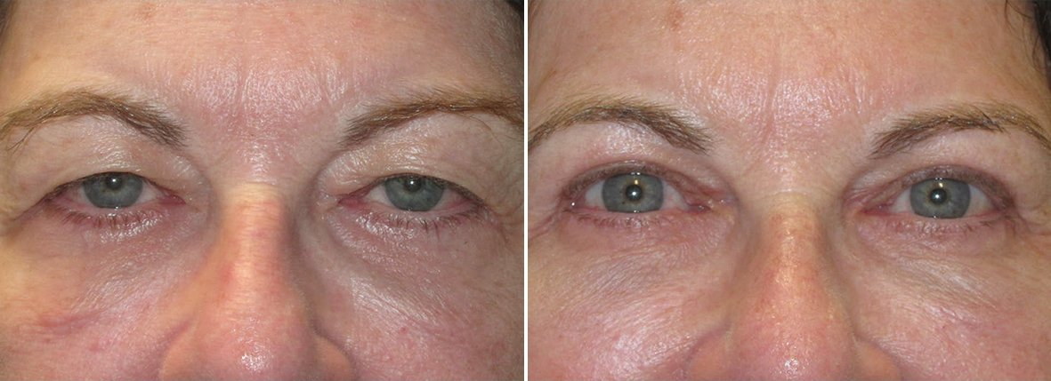 70 year old female patient with upper blepharoplasty, lower blepharoplasty eyelid surgery, eye bag surgery, and ptosis repair before and after recovery photo
