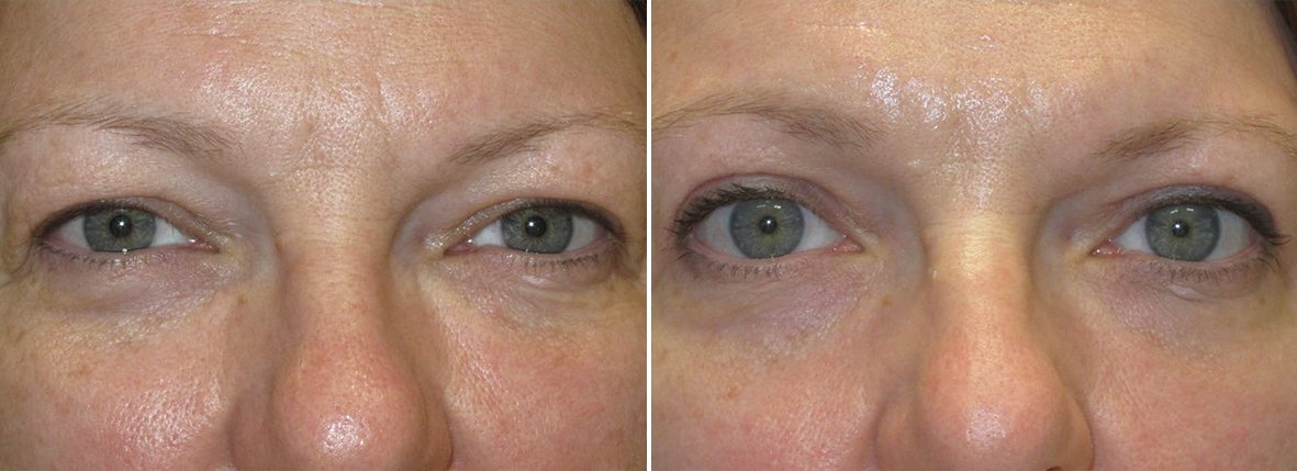 47 year old female patient with upper blepharoplasty eyelid surgery before and after recovery photo