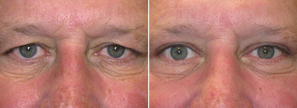 57 year old male patient with upper blepharoplasty eyelid surgery and ptosis repair before and after recovery photo