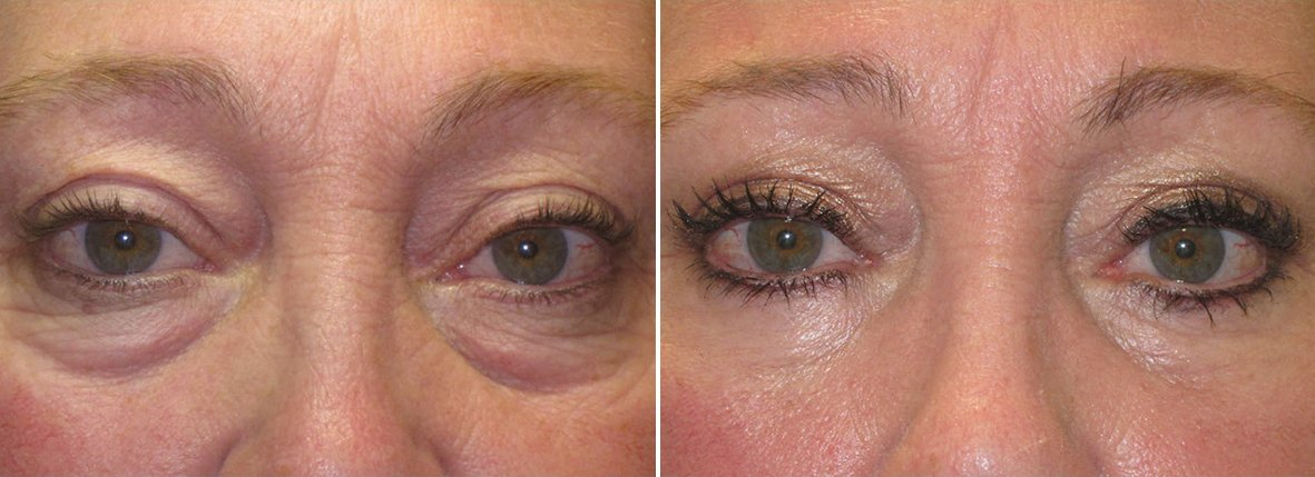58 year old female patient with upper blepharoplasty, lower blepharoplasty eyelid surgery, eye bag surgery, and ptosis repair before and after recovery photo
