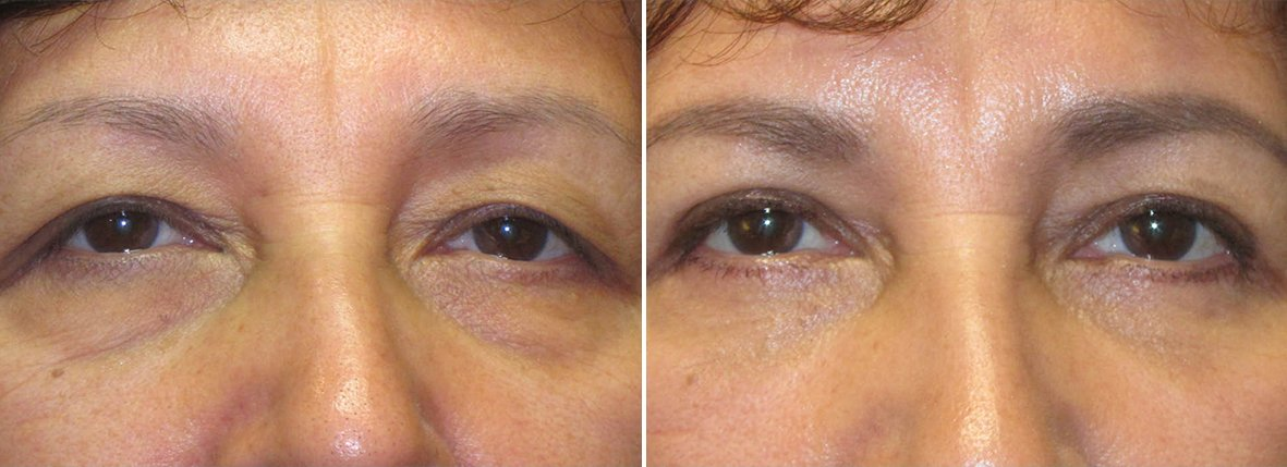 60 year old female patient with upper blepharoplasty, lower blepharoplasty eyelid surgery, eye bag surgery, ptosis repair, and canthopexy surgery to lift and suspend drooping or sagging lower eyelids before and after recovery photo