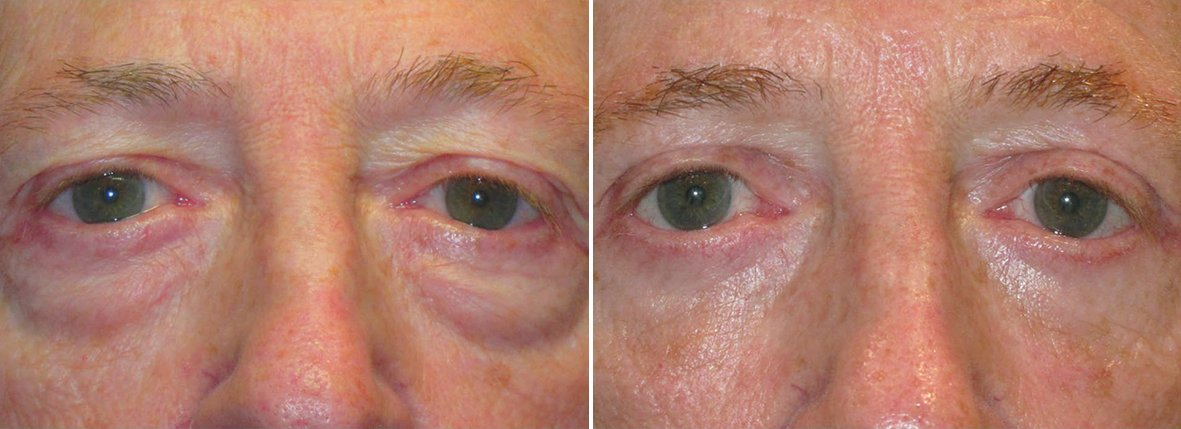 60 year old male patient with upper blepharoplasty, lower blepharoplasty eyelid surgery, eye bag surgery, and canthopexy surgery to lift and suspend drooping or sagging lower eyelids before and after recovery photo