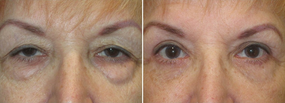 77 year old female patient with upper blepharoplasty, lower blepharoplasty eyelid surgery, eye bag surgery, and ptosis repair before and after recovery photo