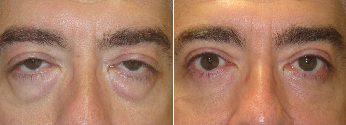 50 year old male patient with upper blepharoplasty, lower blepharoplasty eyelid surgery, eye bag surgery, and ptosis repair before and after recovery photo