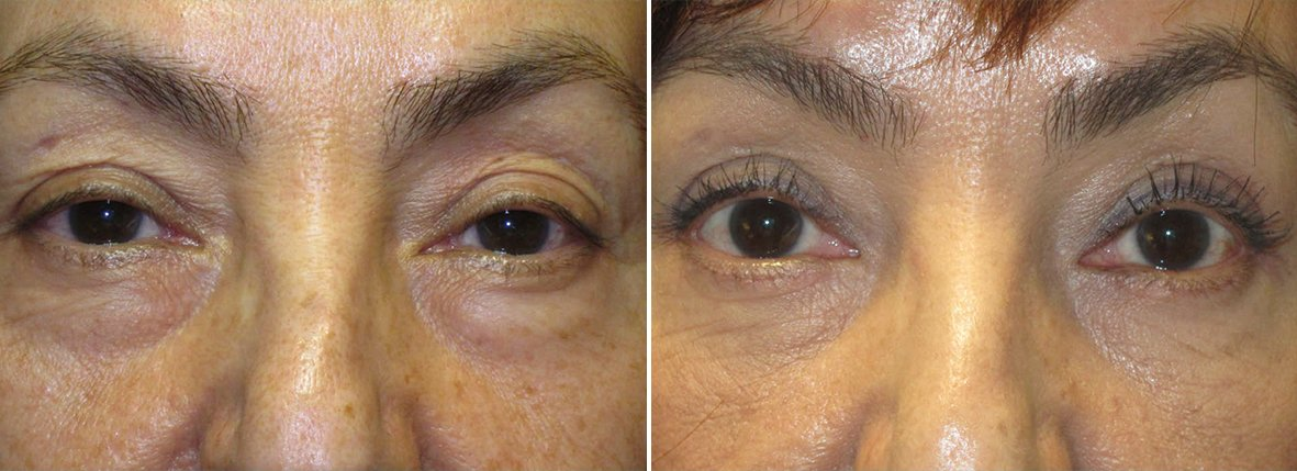 55 year old female patient with upper blepharoplasty, lower blepharoplasty eyelid surgery, and eye bag surgery before and after recovery photo