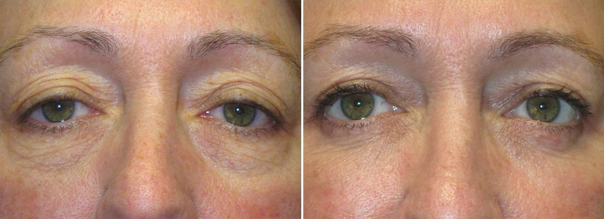 59 year old female patient with upper blepharoplasty, lower blepharoplasty eyelid surgery, eye bag surgery, and ptosis repair before and after recovery photo