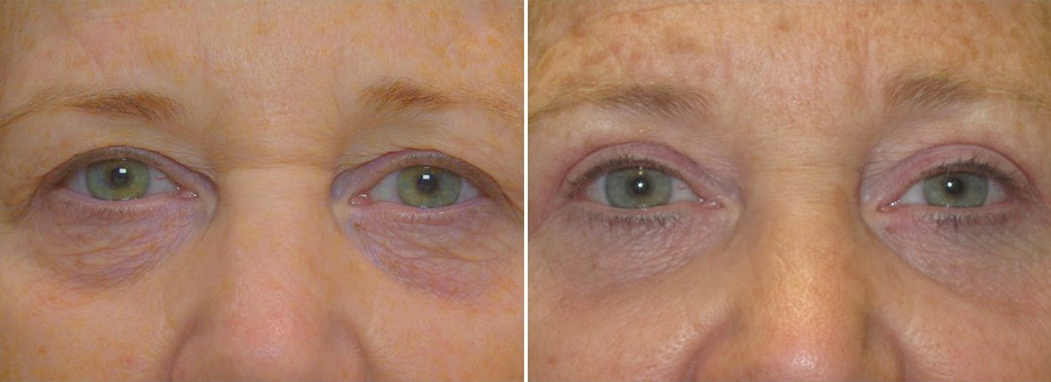 57 year old female patient with upper blepharoplasty, lower blepharoplasty eyelid surgery before and after recovery photo