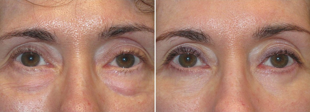 62 year old female patient with lower blepharoplasty eyelid surgery, eye bag surgery, and canthopexy surgery to lift and suspend drooping or sagging lower eyelids before and after recovery photo