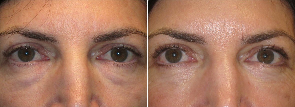 51 year old female patient with lower blepharoplasty eyelid surgery and eye bag surgery before and after recovery photo