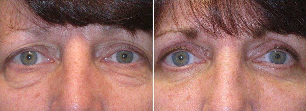 59 year old female patient with upper blepharoplasty, lower blepharoplasty eyelid surgery, and eye bag surgery before and after recovery photo
