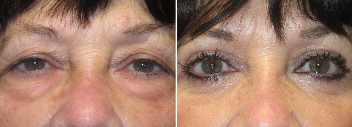 72 year old female patient with upper blepharoplasty, lower blepharoplasty eyelid surgery, and eye bag surgery before and after recovery photo