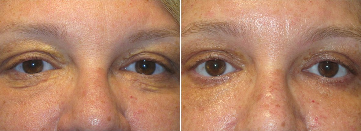 50 year old female patient with upper blepharoplasty, lower blepharoplasty eyelid surgery, eye bag surgery, and ptosis repair before and after recovery photo