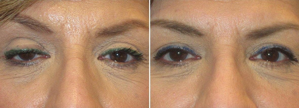 53 year old female patient with ptosis repair before and after recovery photo
