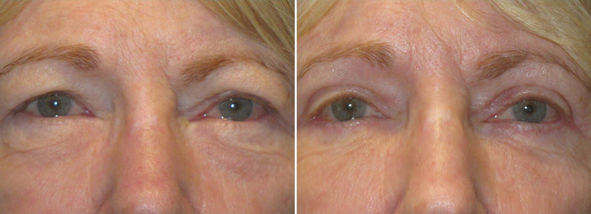 74 year old female patient with upper blepharoplasty, lower blepharoplasty eyelid surgery, eye bag surgery, ptosis repair, and canthopexy surgery to lift and suspend drooping or sagging lower eyelids before and after recovery photo