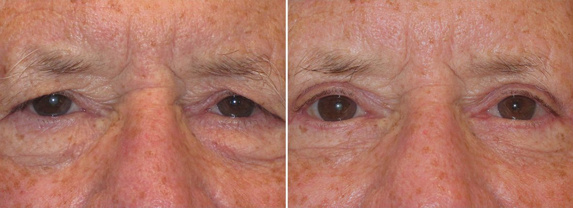 71 year old male patient with upper blepharoplasty, lower blepharoplasty eyelid surgery, eye bag surgery, ptosis repair, and canthopexy surgery to lift and suspend drooping or sagging lower eyelids before and after recovery photo