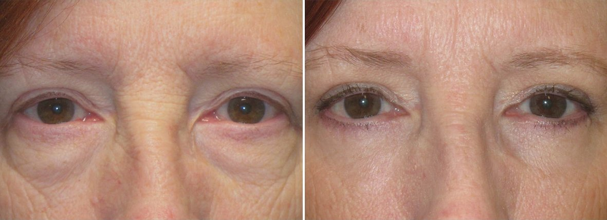 58 year old female patient with lower blepharoplasty eyelid surgery, eye bag surgery, and canthopexy surgery to lift and suspend drooping or sagging lower eyelids before and after recovery photo