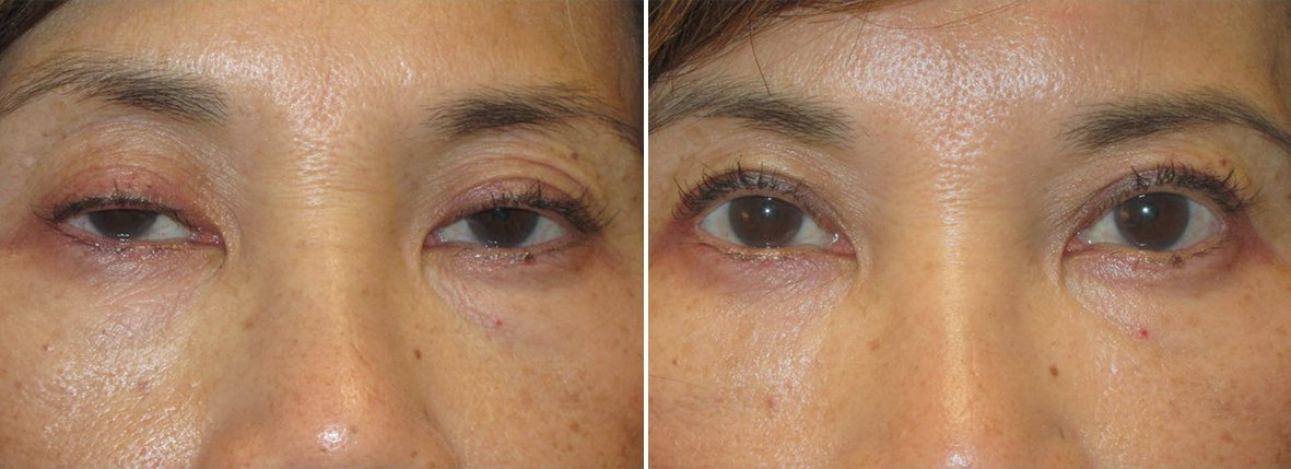 55 year old female patient with upper blepharoplasty, lower blepharoplasty eyelid surgery, eye bag surgery, and ptosis repair before and after recovery photo